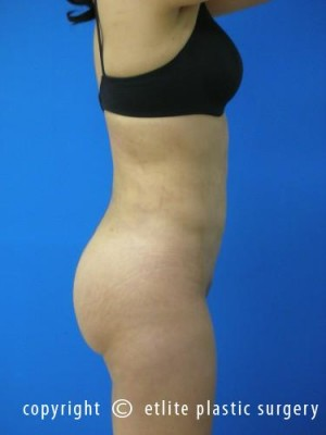 Miami Brazilian Butt Lift Before And After Photos Ft